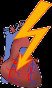 Defibrillation des Herz nach einem Herzinfarkt
